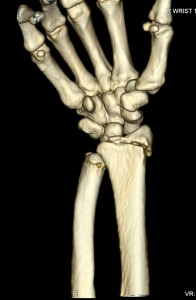 right wrist 2